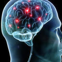 lit up areas of brain activity